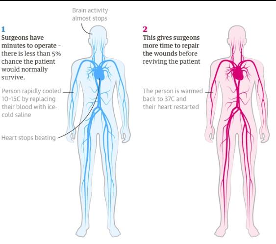 Метод введения человека в состояние анабиоза
