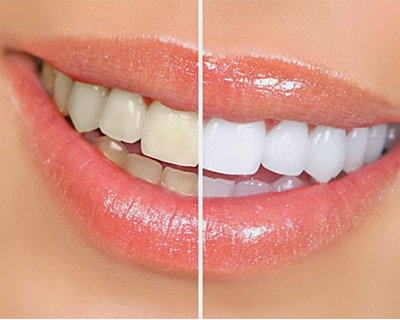 Полоски для отбеливания зубов не так безопасны как может показаться