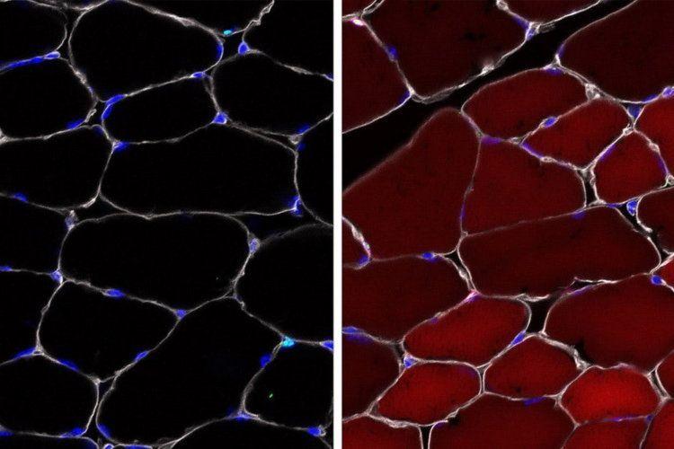 Геном стволовых клеток удалось отредактировать внутри организма