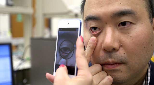 Измерить уровень гемоглобина теперь можно с помощью смартфона